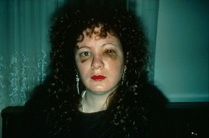 7. Goldin, Nan One Month after being Battered, 1984